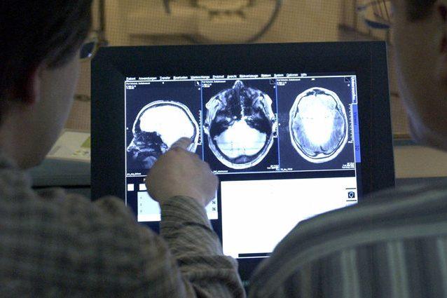 cervelloscansione-638x425
