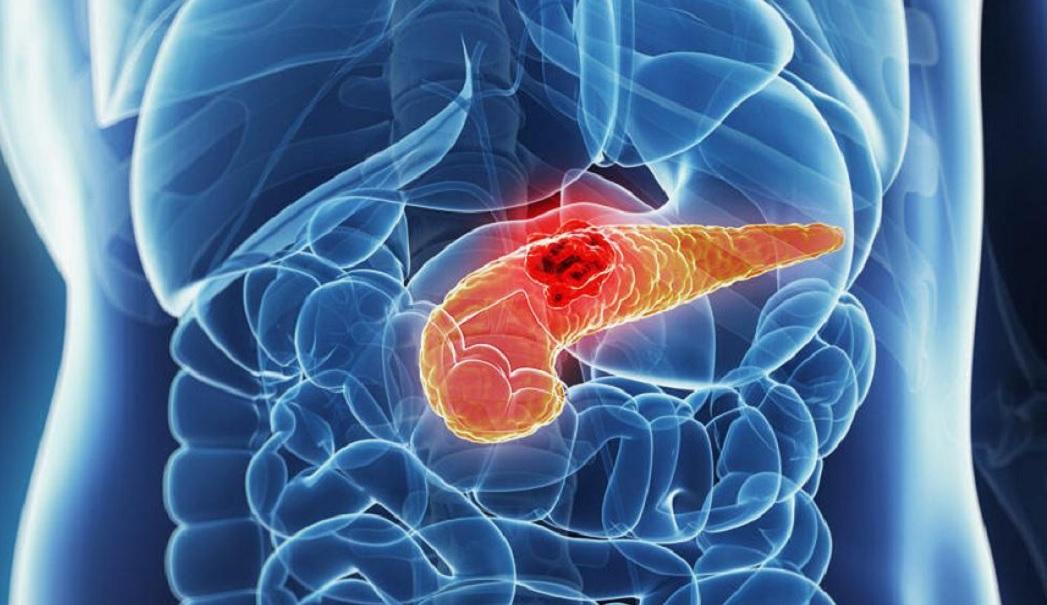 Perché-è-difficile-trattare-il-cancro-al-pancreas